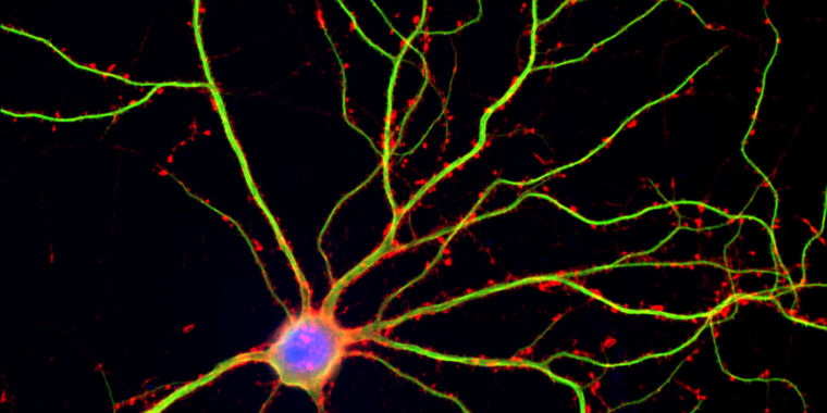 REM Sleep Lets the Brain Cut and Strengthen New Connections