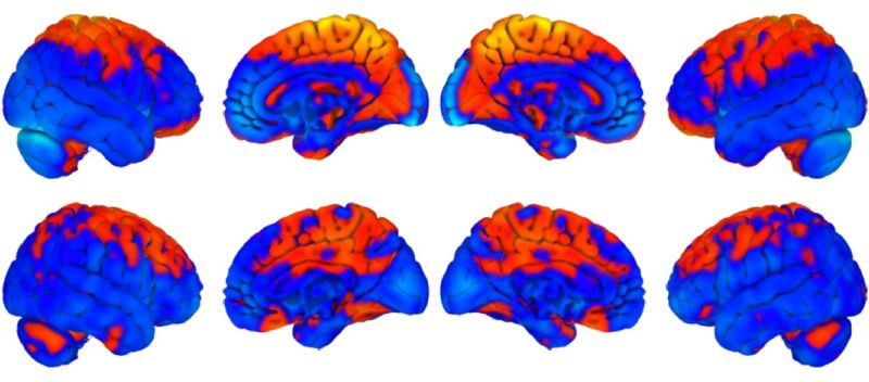 The top row shows brain changes with long duration bed rest, the bottom row shows changes with spaceflight. Orange shows regions of increase, blue a decrease.