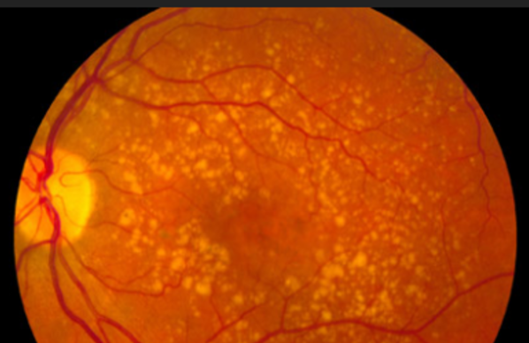 The yellow spots in this image are sites of retinal degeneration.