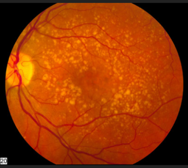 macular dystrophy retina - photo #42