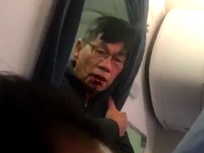 Police story differs from videos of man dragged from United flight [Updated]