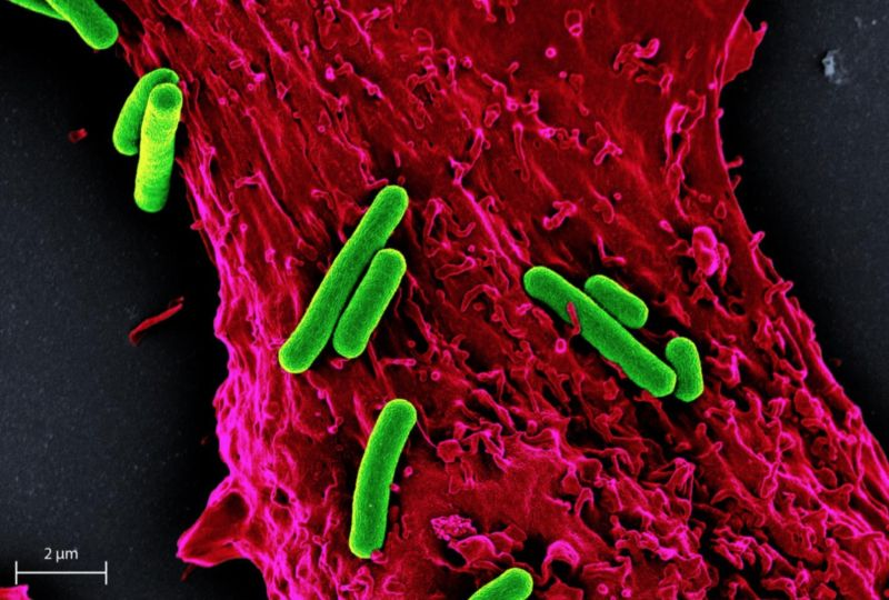 False-colored scanning electron micrograph of multiple S. elongatus cyanobacteria (green) with a single rat heart muscle cell (red).