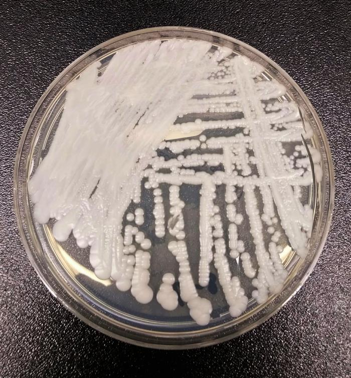 A strain of <em>Candida auris</em> cultured in a petri dish at the CDC.
