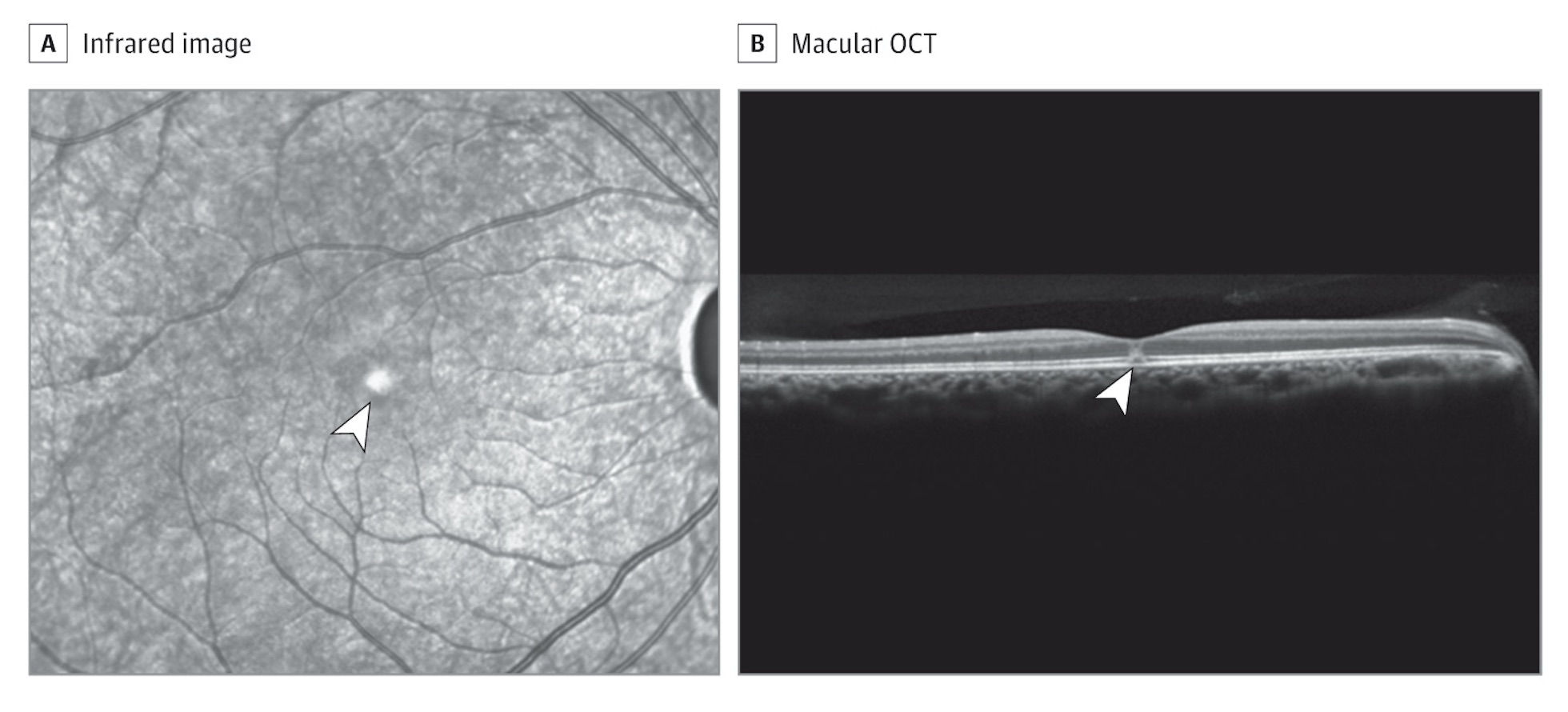 nfrared (A) and macular optical coherence tomography (OCT) (B) images demonstrating a hyperreflective spot in the fovea (arrowheads), presumably representing disruption of the inner and outer photoreceptor segments without evidence of underlying retinal pigment epithelial defects, consistent with bilateral solar retinopathy.