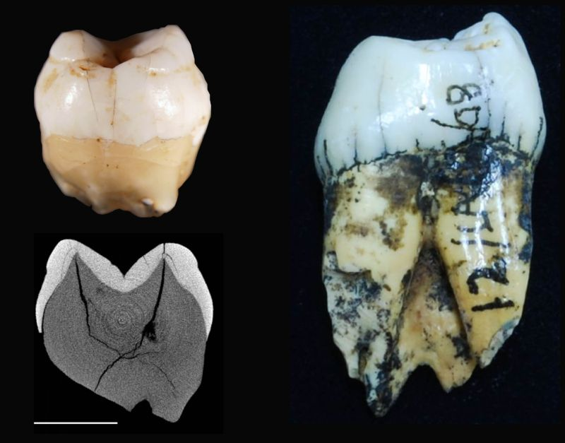 Lida Ajer modern human tooth (left top) with its corresponding scanned image (left bottom) compared to an orangutan tooth (right)