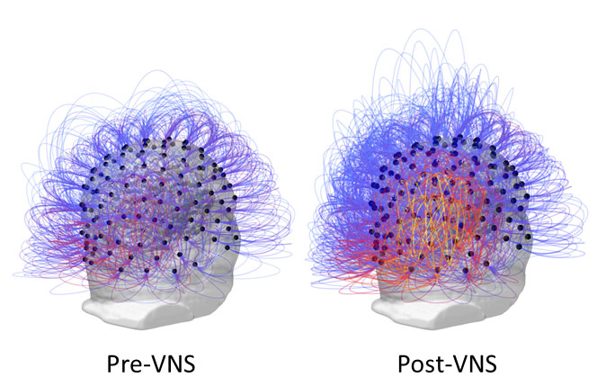 Information sharing across all electrodes before and after vagus nerve stimulation. On the right, the warmer colors (yellow/orange) indicated an increase of connectivity among posterior parietal regions.