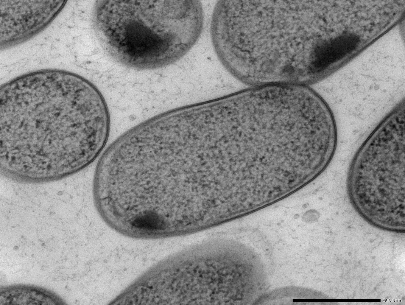 Transmission electron microscopy (TEM) of in vitro-cultured Klebsiella (Kp-2H7).