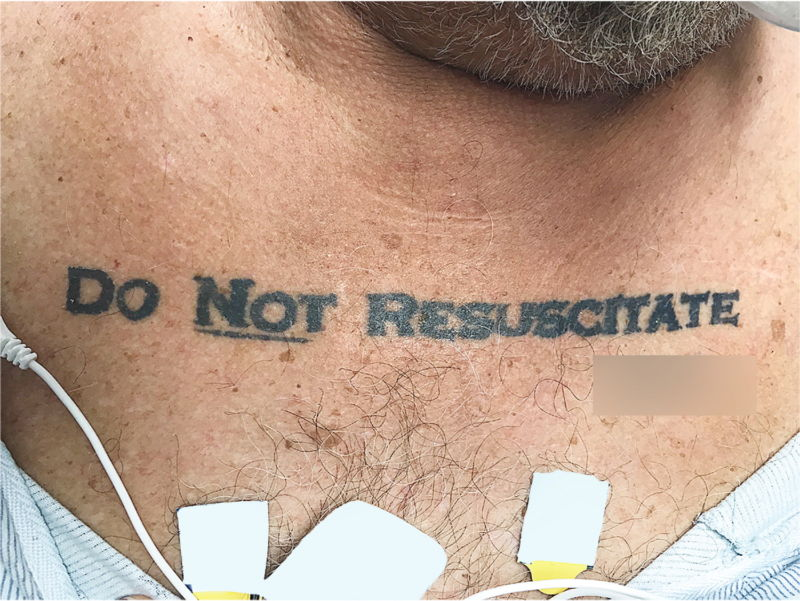 "Real wish or drunken regret? A ""Do Not Resuscitate"" tattoo throws doctors"
