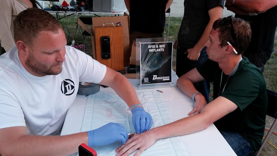 Dangerous Things CEO Amal Graafstra installs a microchip at ToorCamp.