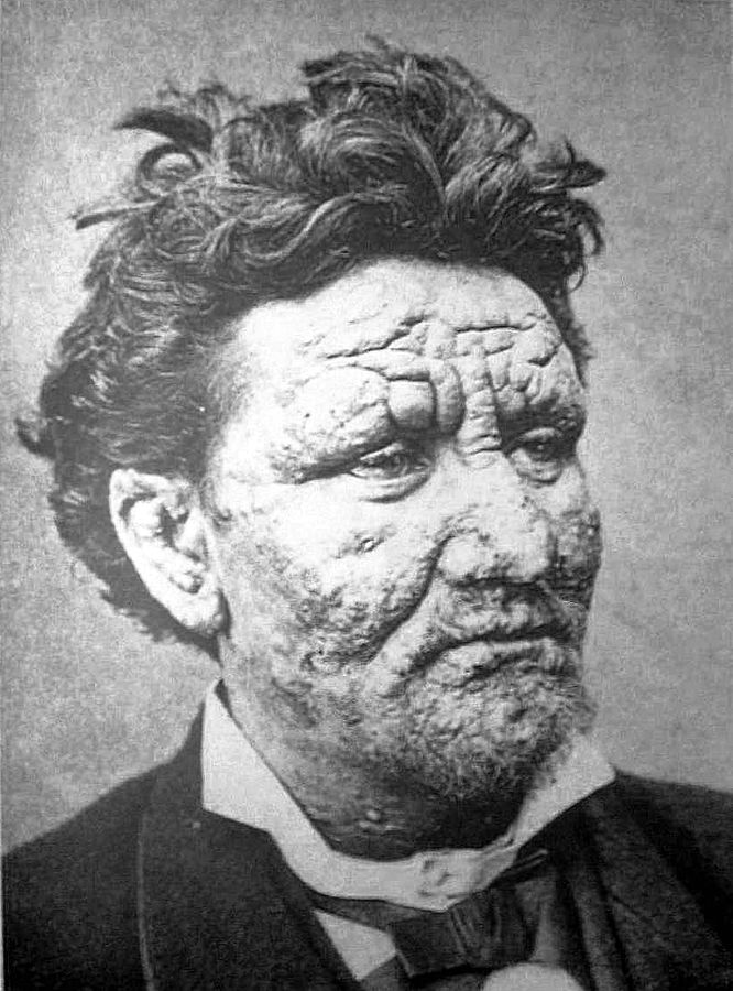 Arran Reeve, suffering from leprosy, circa 1886.