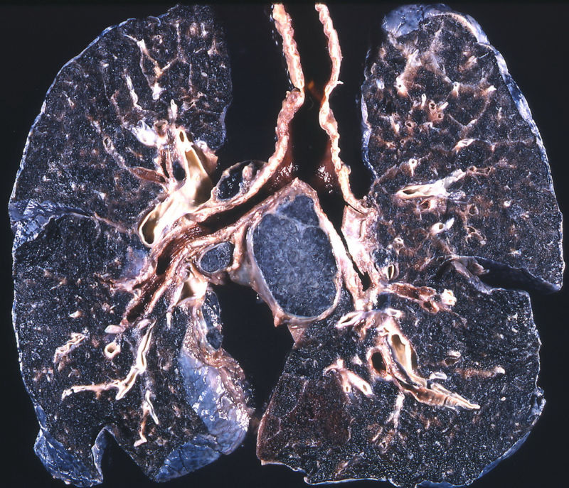 Lungs of a coal worker, with black pigmentation and fibrosis from inhalation of coal dust.