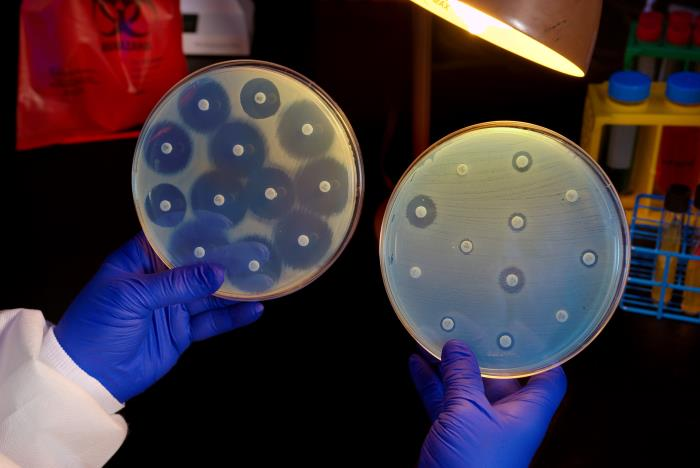 This 2014 CDC image shows two Petri dish culture plates growing bacteria in the presence of discs containing various antibiotics. The bacterial isolate on the left plate appears to be susceptible to the antibiotics on the discs and is therefore unable to grow adjacent to the discs. The plate on the right was inoculated with a Carbapenem-resistant Enterobacteriaceae (CRE) bacterium that proved to be resistant to almost all of the antibiotics tested.