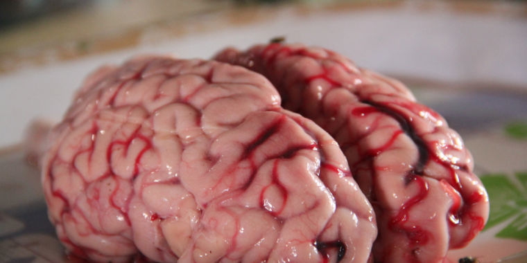 Human brain cells can make complex structures in a dish—is this a problem?
