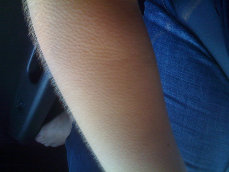 Close-up image of arm experiencing goosebumps.