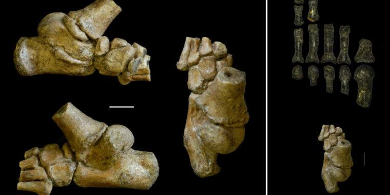 The Road to Bipedalism Wasn't Straight and Narrow