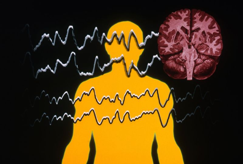 Stylized rendering of electrical waves over the outline of a human.
