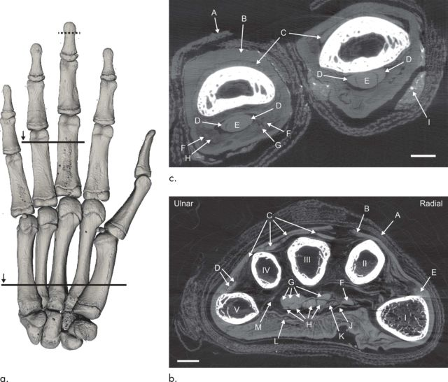 The left image shows the hand viewed palm-up, with lines indicating where the cross-sections are. On the right, the images show the hand, viewed from the fingertips. The lower image (b) shows all five digits, with arrows pointing to linen (A), skin (B), tendons (C) through (H), part of the carpal ligament (J), nerves (K) and (L), a possible artery (M). The upper image (c) shows a cross-section of the lower section of the third and fourth fingers, with arrows pointing to linen (A), skin (B), tendons (C) through (E), arteries (F), nerves (G) and (H), and embalming residue (I).