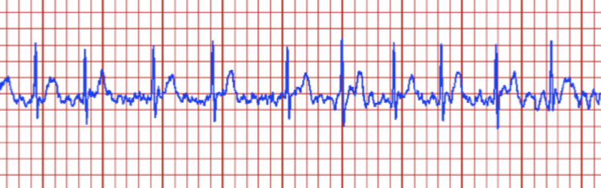 What is atrial fibrillation, and why is your watch telling