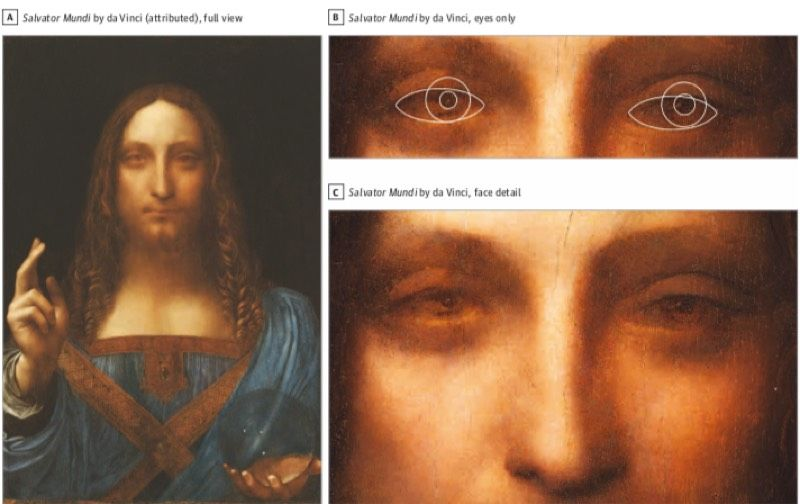 The recently restored oil painting <em>Salvator Mundi</em>, attributed to Leonardo, shows evidence of exotropic eye alignment, a new paper claims.