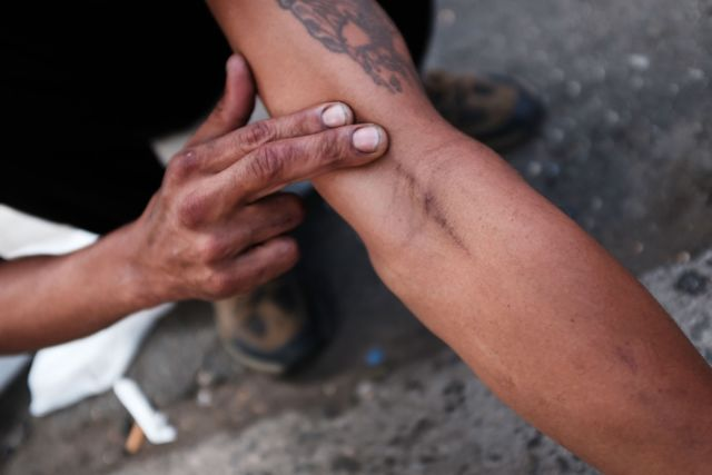 One sample problem asked participants to calculate the likelihood that a randomly selected person with fresh needle marks on their arm was a heroin addict.