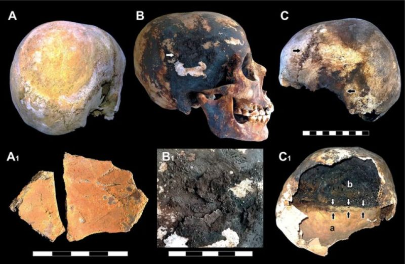 Italian scientists detected red and black mineral incrustations in victims' skulls—the iron from human blood.
