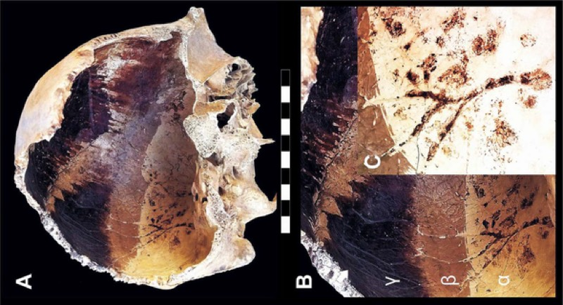 An adult male skull showing dark staining, likely the result of extreme heat on the cranial cavity.