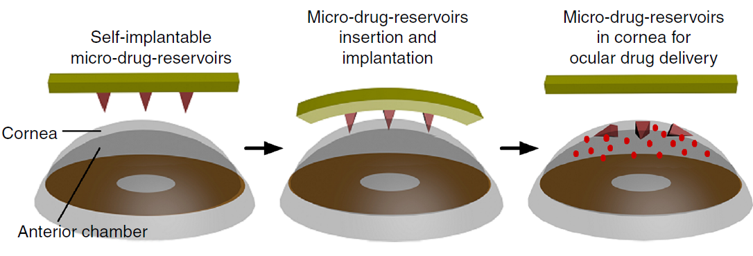 The contact-like patch would leave tiny, dissolving microneedles behind in the eye to slowly deliver drugs over the next few days.