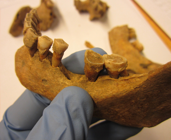 Medieval dental plaque sheds light on how our microbiomes have changed