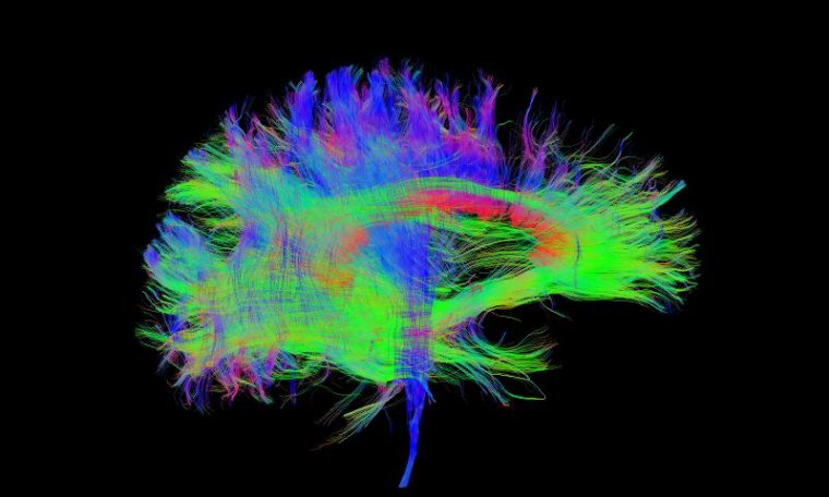 Multicolored image of the neural connections within a brain.