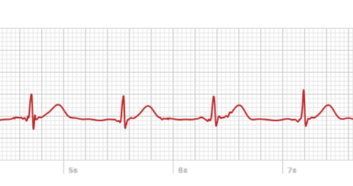A look at the Apple Watch's ECG, from someone who needs it