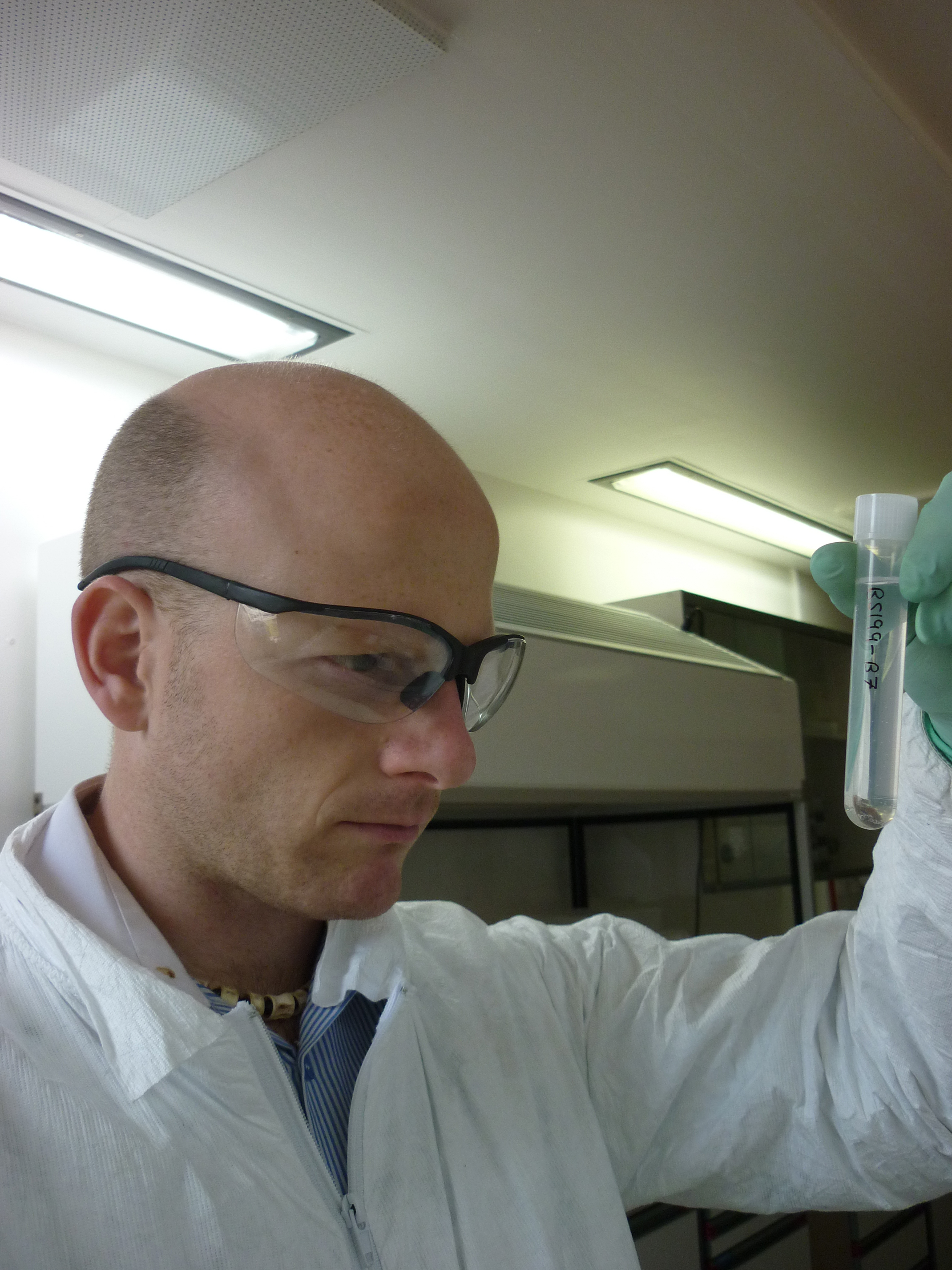 Madgwick watches a pig bone sample demineralize in acid; all scientists have to hold up a test tube and stare intently at it at least once.