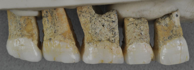 Meet your long-lost distant cousin, Homo luzonensis - image rt-teeth-2-premolars-3-molars-lingual-view-1440x526 on https://alldesingideas.com