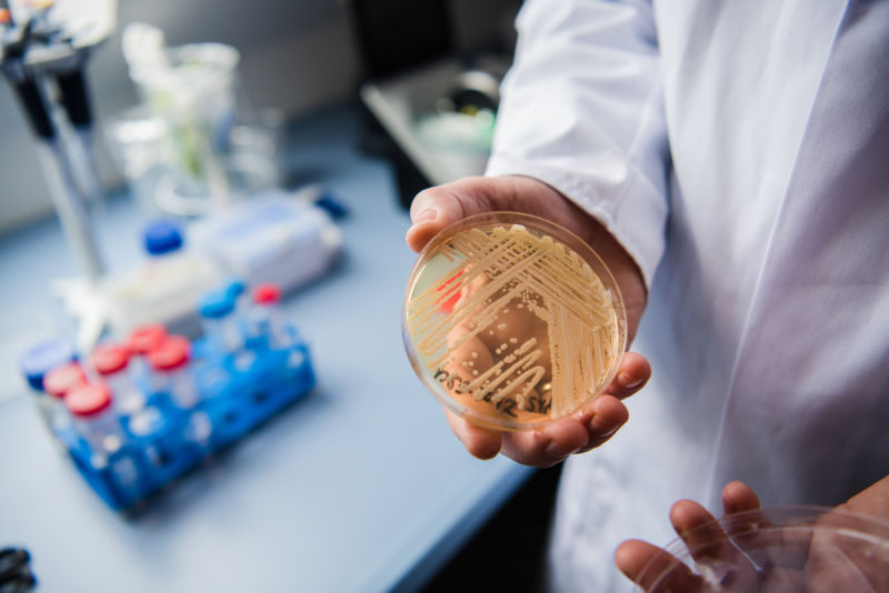 The director of the German National Reference Centre for Invasive Fungus Infections holding a petri dish of the yeast <em>Candida auris</em> in January 2018.