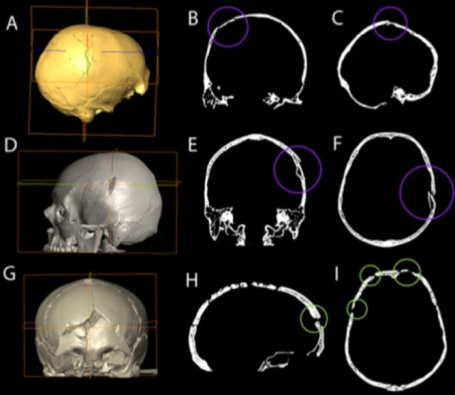 Study Concludes 33 000 Year Old Skull Shows Signs Of Blunt Force Trauma Ars Technica