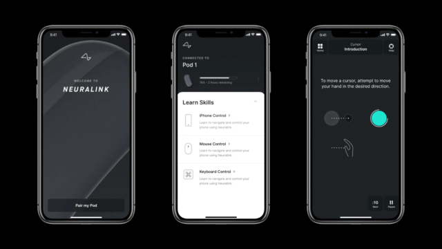 One day, Neuralink hopes implantees will be sent home with an app on their phone that monitors the device and lets them control it.
