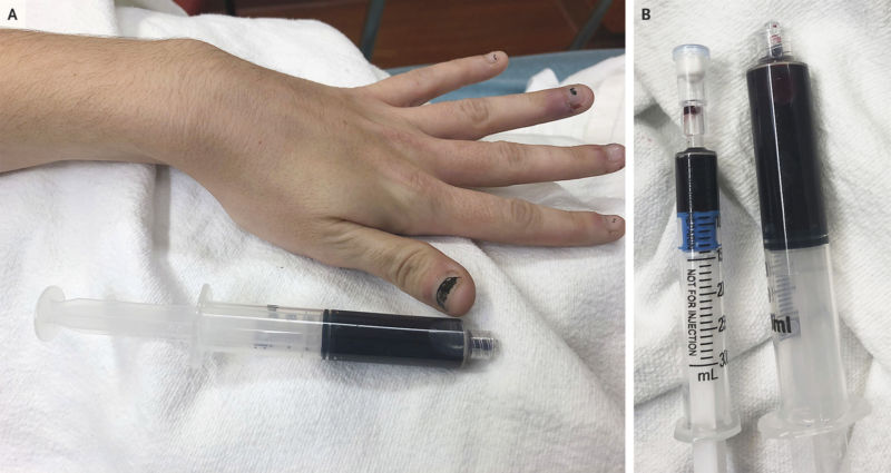 Collage of two photos: one of a discolored hand and the other of a set of hypodermic needles.