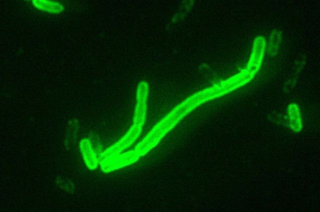 Image of <em>Yersinia pestis</em> seen at 200× magnification with a fluorescent label.