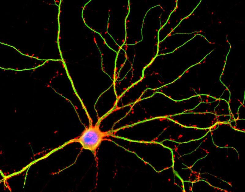 Neuron image