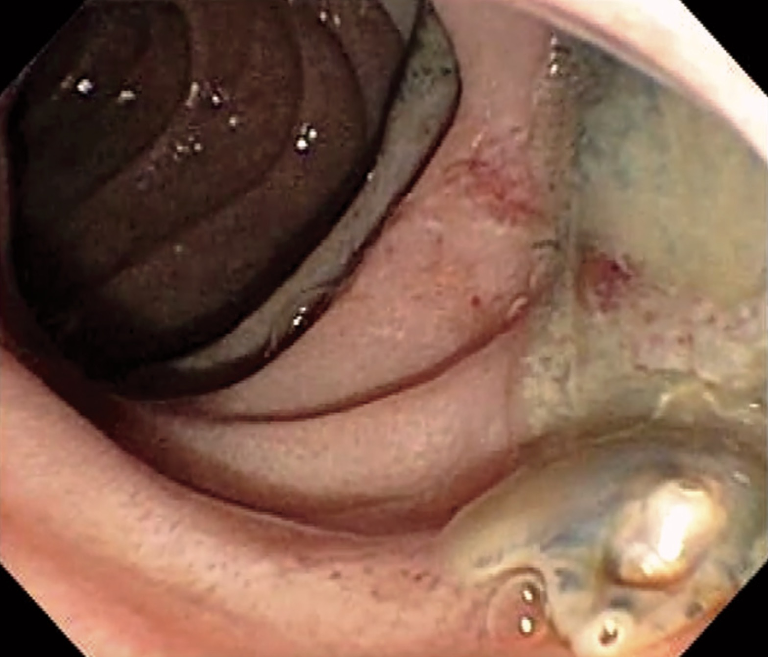 Fluke Parasite >> Watch As This Beautifully Disgusting Liver Fluke Parasite