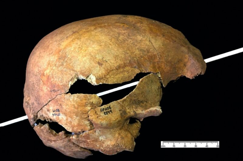 Reconstruction of the angle of entry into a cranium collected during the excavation of the burial ground of a medieval Dominican friary in Exeter, England.