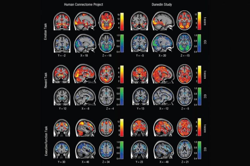 A new review study has bad news for scientists keen on using task-oriented fMRI to draw conclusions about any one person's brain.