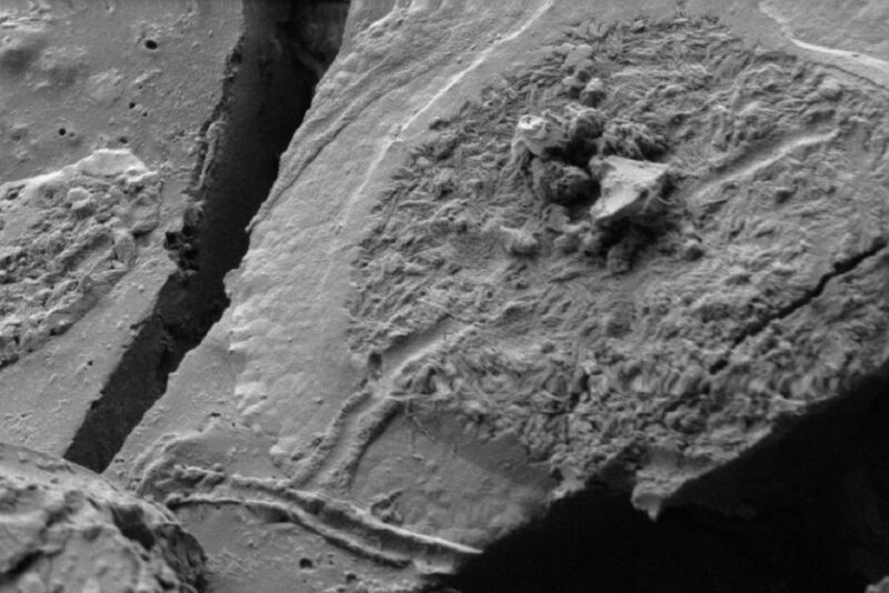 Using scanning electron microscopy (SEM), forensic archaeologists have found evidence of human neurons in the remains of one of the victims of the eruption of Mt. Vesuvius in AD 79.