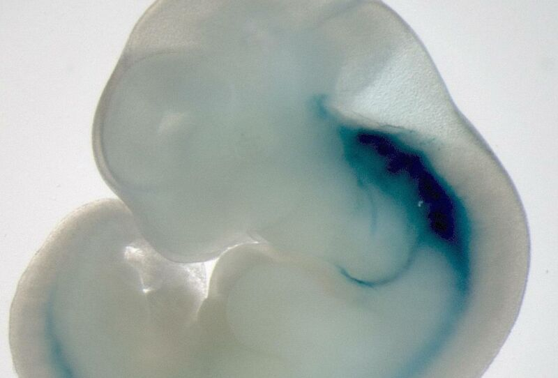 A gross white blob looks vaguely like a human ear.