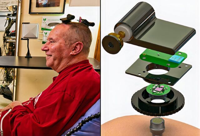 (l) A participant in the BrainGate clinical trial uses wireless transmitters that replace the cables normally used to transmit signals from sensors inside the brain. (r) The wireless device enables transmission of full-broadband brain signals while consuming a small amount of power. Batteries last for up to 36 hours.