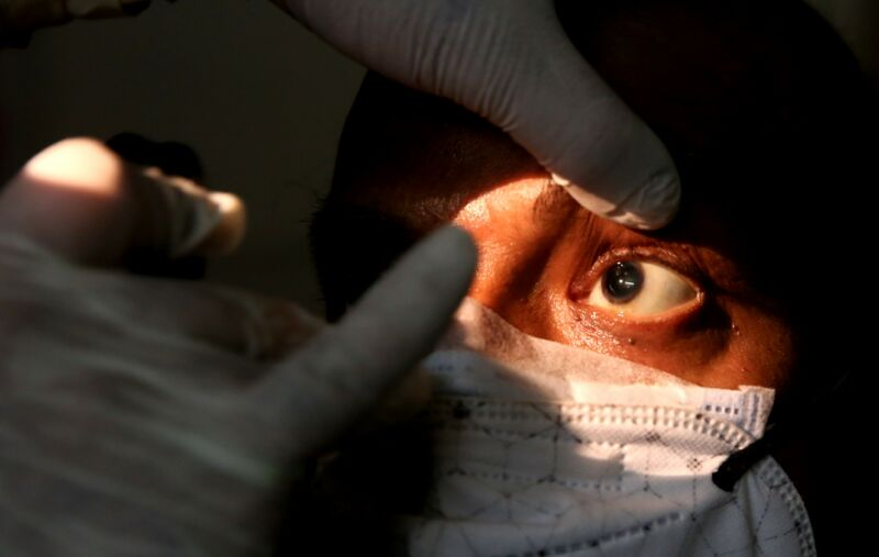 A suspected mucormycosis black fungus patient receives examination at a hospital in Bhopal, India, on May 29, 2021.