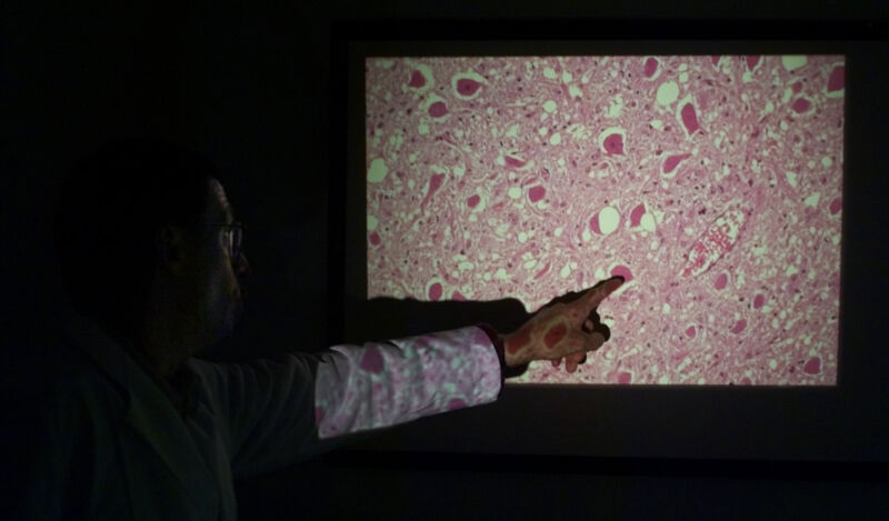 An arm points at a video projection of gross pink goo.
