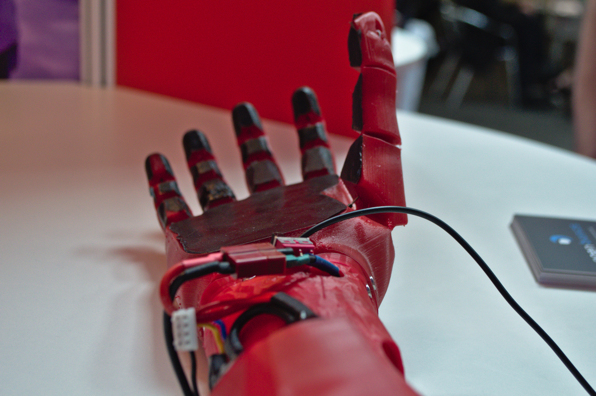 3D-printed prosthetic hand by Open Bionics