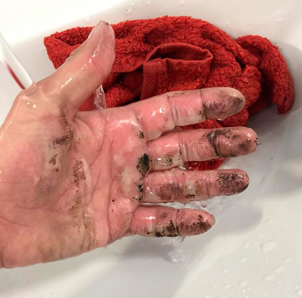 Katy Emslie's hand after her Power Bar exploded