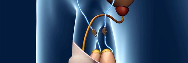 Lack of sperm flow